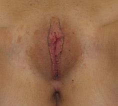 labiaplasty - patient 4 - after 1